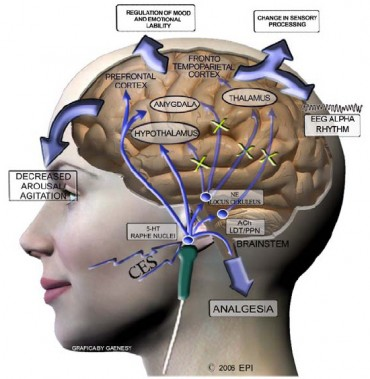 Neurological Modulation